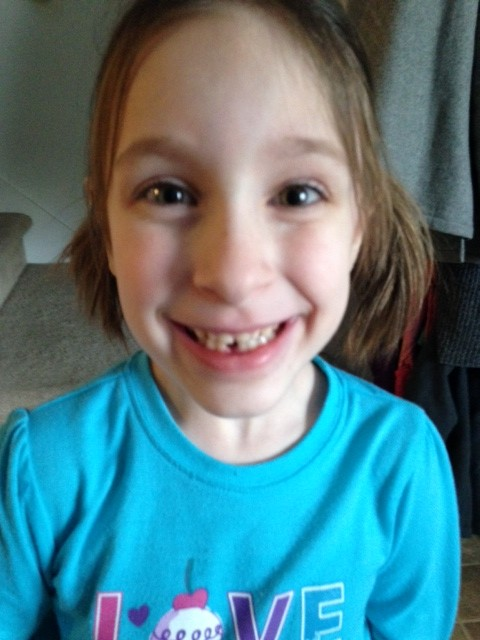 Lydia's first lost tooth